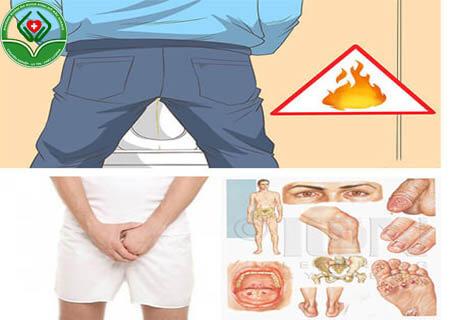 Biểu hiện bệnh chlamydia