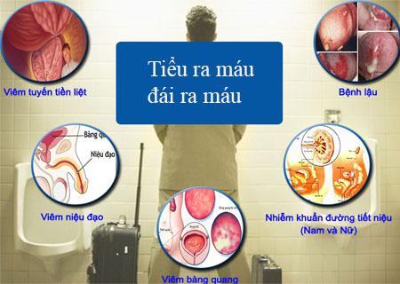 Tiểu ra máu cảnh báo nhiều bệnh nguy hiểm
