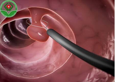 Thế nào là polyp cổ tử cung