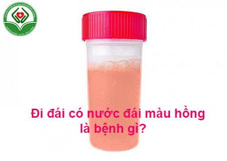 Đi đái có nước đái màu hồng là bệnh gì?