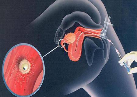 Bơm tinh trùng bao nhiêu lần thì có thai