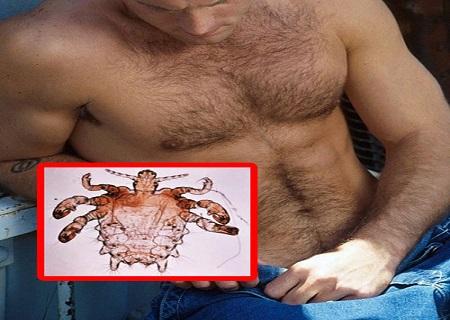 Vi khuẩn khiến nam giới ngứa dương vật