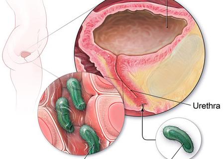 Nhiễm trùng đường tiết niệu có nhiều biểu hiện khác nhau