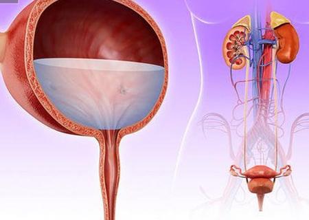 Viêm đường tiết niệu mãn tính cần phải được điều trị kịp thời