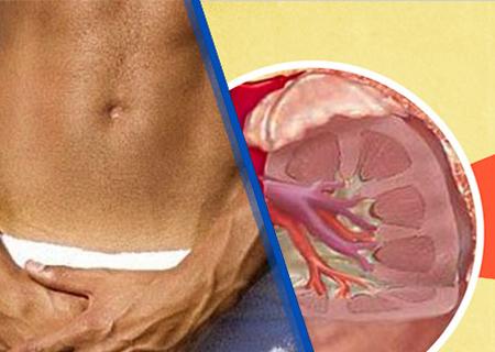 Viêm đường tiết niệu mãn tính là tình trạng bệnh nguy hiểm
