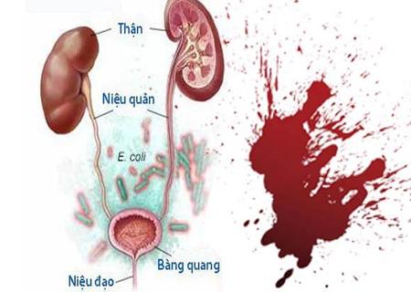 Viêm tiết niệu ra máu do nhiều nguyên nhân khác nhau