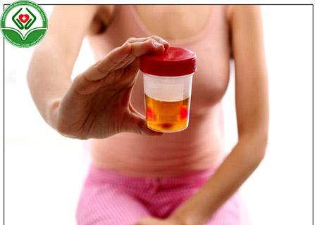 biểu hiện bệnh viêm đường tiết niệu ở nữ giới