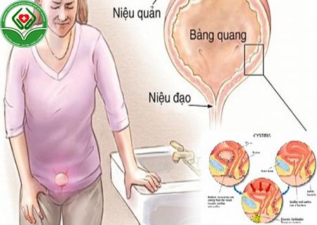 nhiễm khuẩn đường tiết niệu phụ nữ